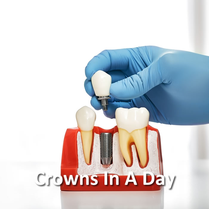 Crowns In A Day | Advanced Technology | Santa Rosa
