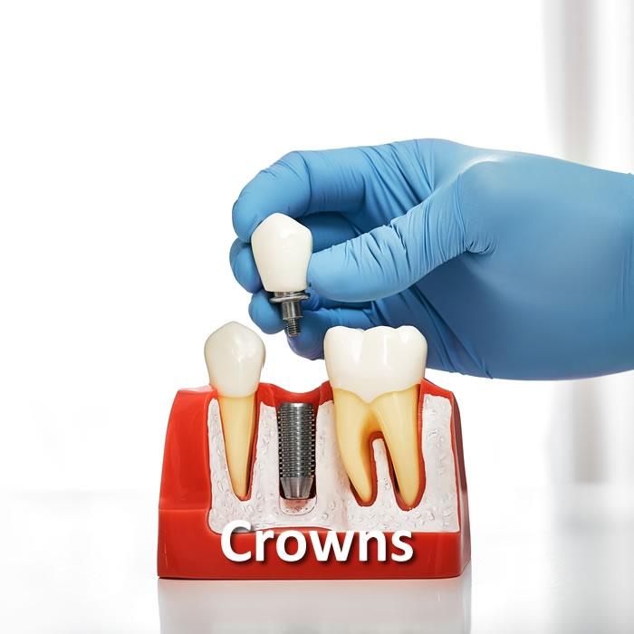 Crowns   Cosmetic Dentistry   Santa Rosa