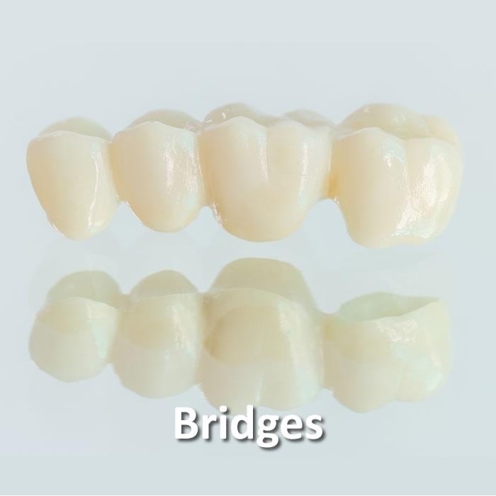 Bridges |  Dental Restorative | Santa Rosa