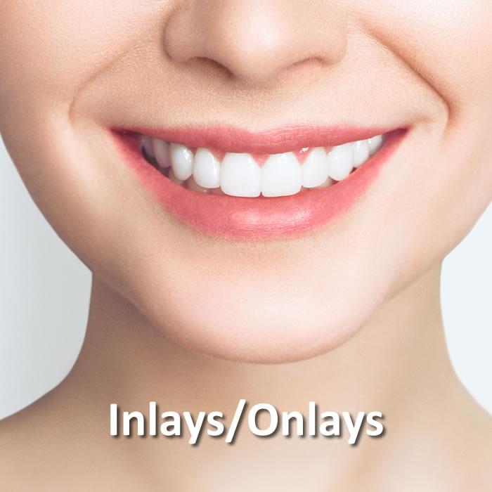 Inlays/Onlays | Dental Restorative | Santa Rosa