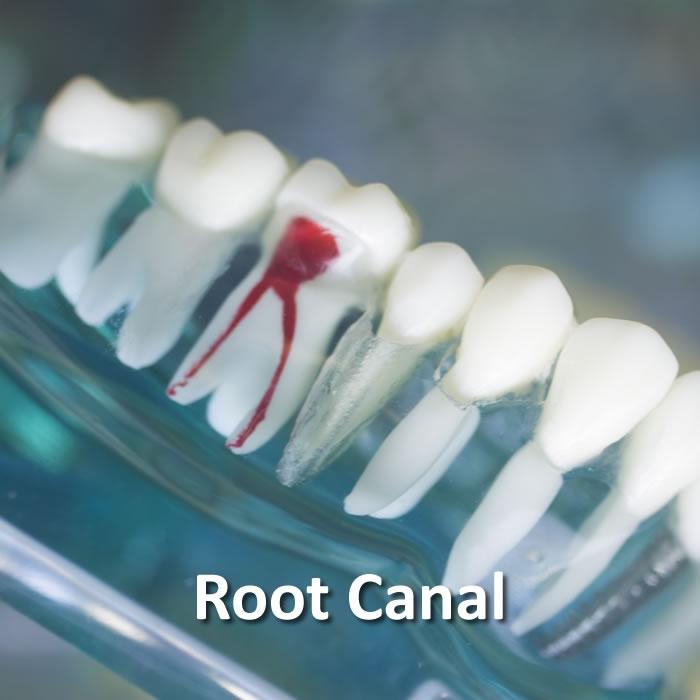 Root Canal |  Dental Restorative | Santa Rosa
